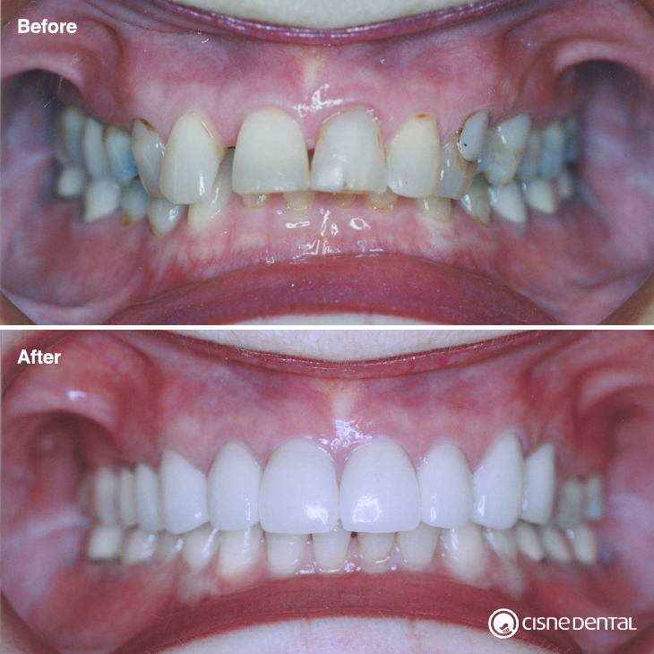Dental orthodontics on a elderly woman combined with estetic porcelain on upper teeth and teeth whitening carried out by Cisne Dental Clinic in Madrid