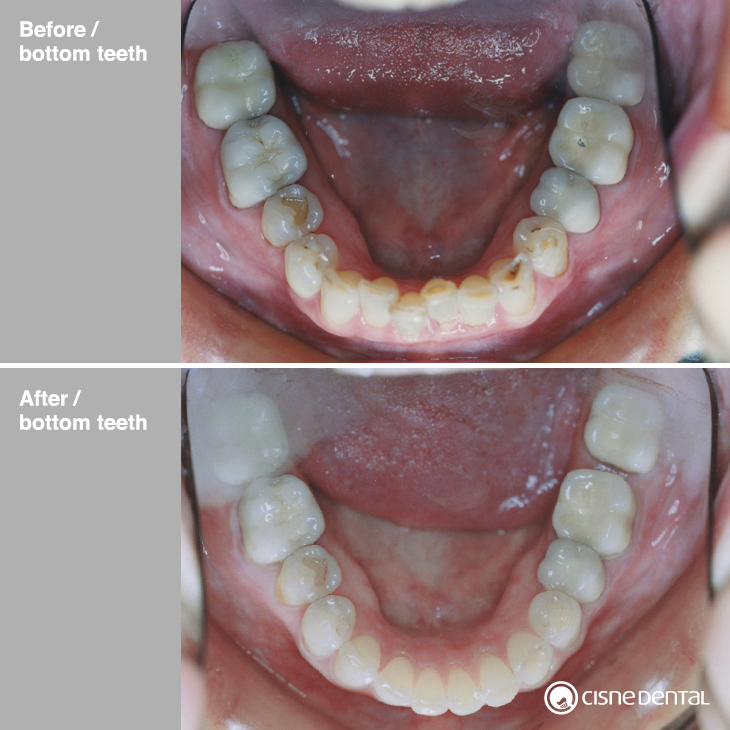 Dental orthodontics on a middle age men combined with estetic porcelain on upper teeth and teeth whitening in Madrid Spain by Cisne Dental Clinic