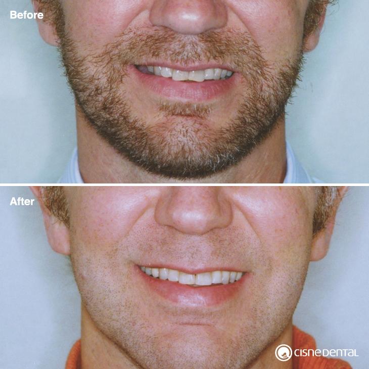 Orthodontics and dental implants combined with laser teeth whitening on an adult carried out by Cisne Dental Clinic in Madrid