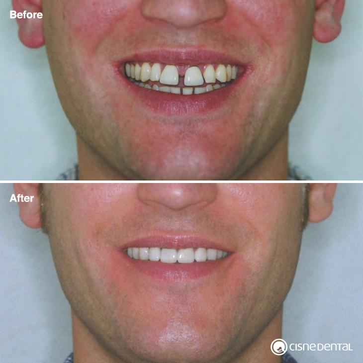 Dental orthodontics on an adult using estetic braces and combined with estetic porcelain on upper teeth carried out by Cisne Dental Clinic in Madrid