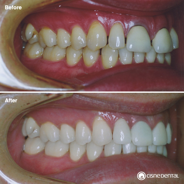 Dental orthodontics on teenagers combined with esthetic porcelain on upper teeth carried