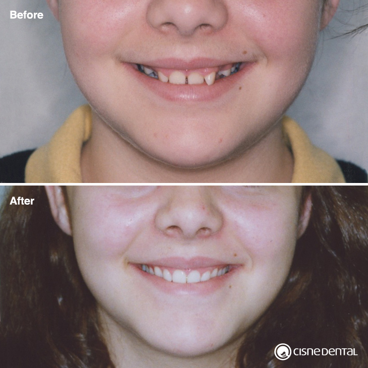 Dental orthodontics on kid carried out by Cisne Dental Clinic in Madrid